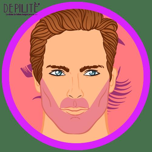 depilación láser en barba hombre