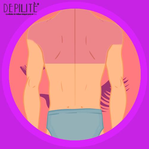 depilación láser en espalda superior hombre