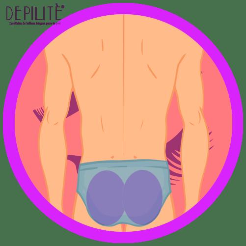 depilación láser en glúteos hombre