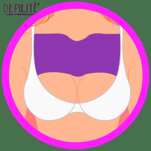 depilación láser en pecho mujer