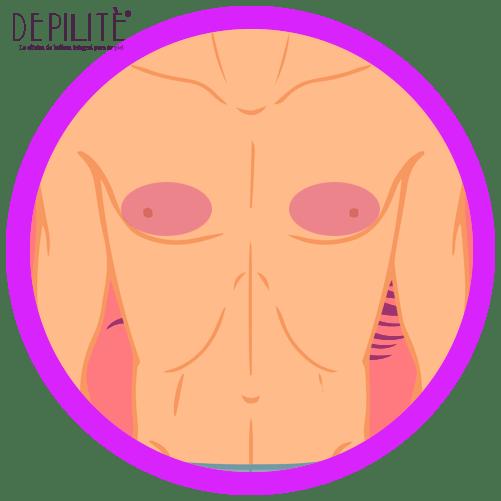 depilación láser en pezones hombre